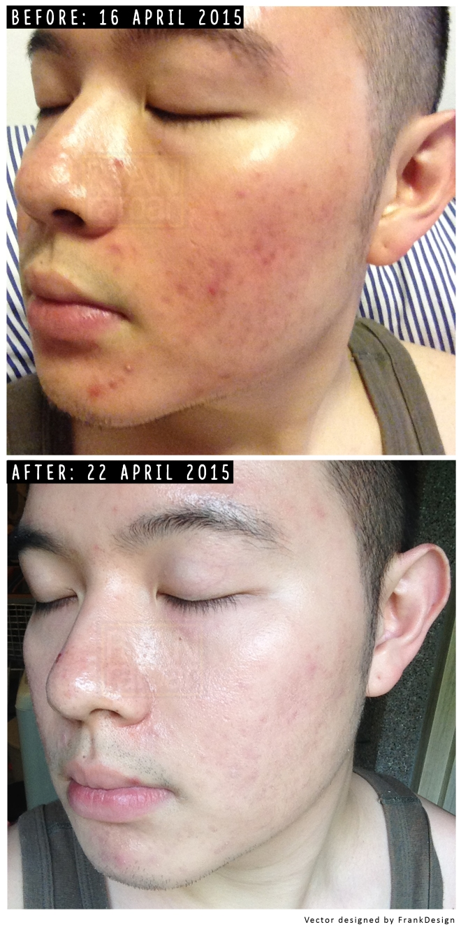 (My humble result after using the regime - no other skin care products outside the brand - for 6 days)